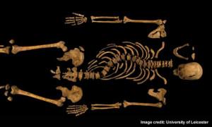 Richard III's bones Note the scoliosis